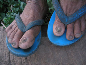 Flops In Ugly Images Flip Feet